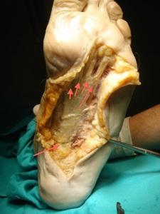 podologofascitis