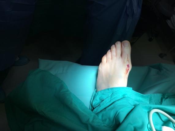 cirugia juanetes cordoba