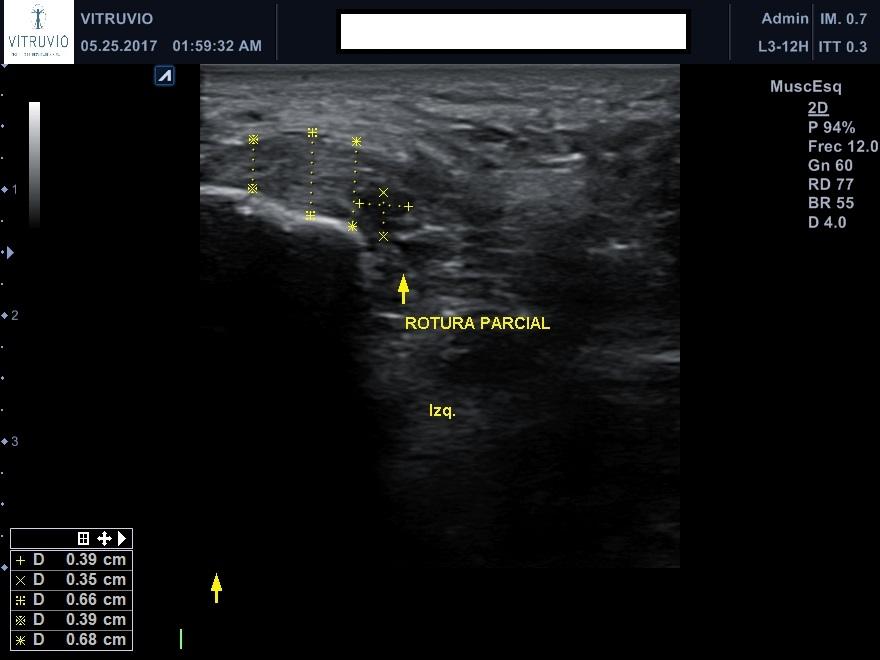 rotura parcial fascia