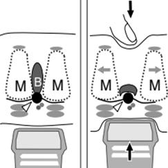 tratamiento neuroma de morton córdoba