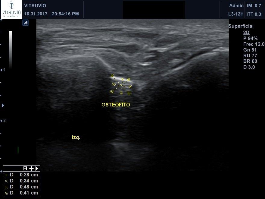 solución dolor pie